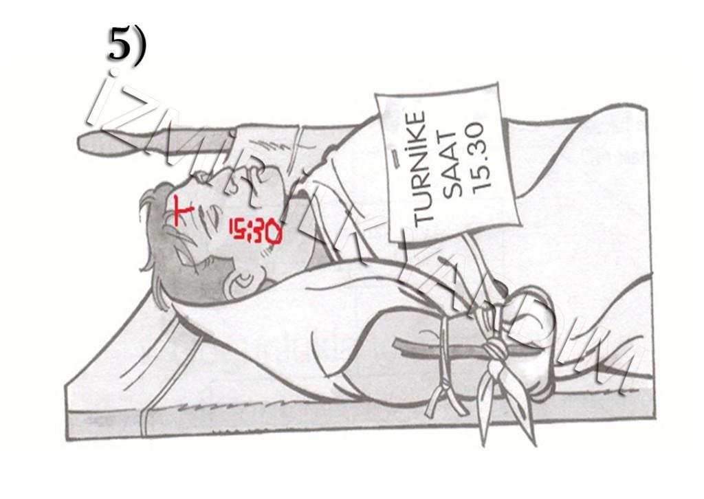 turnike-nasıl-yapılır-3.
